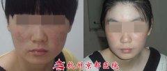 儿童皮炎湿疹症状图片