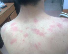 日光蕁麻疹